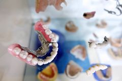 Dental Tooth Porcelain Prosthesis in Dentist Stock Photo