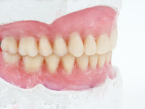 Dental total wax prosthesis Stock Photo