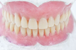 Dental total wax prosthesis Stock Photography