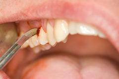 Dental treatment Royalty Free Stock Photo
