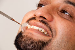 Dental treatment. An Asian / Indian man getting dental treatment Royalty Free Stock Photography