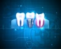 Dental treatment background Stock Images