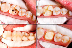 Before and after. Dental treatment, ceramic crown royalty free stock photography