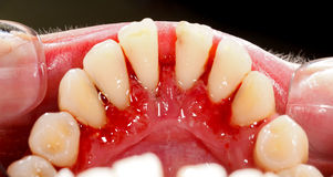 After Dental Treatment Royalty Free Stock Photos