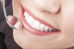 Dental Treatment with Mouth Mirror of Young Caucasian Female Dur Royalty Free Stock Photos