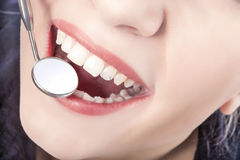 Dental Treatment with Mouth Mirror of Young Caucasian Female Dur Stock Photography