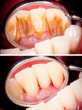 Before and after. Dental treatment, tartar removal Royalty Free Stock Images