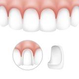 Dental veneers on human teeth. Vector dental veneers on human teeth isolated on white background Royalty Free Stock Image