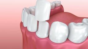 Dental Veneers: Porcelain Veneer installation Procedure. 3D animation stock illustration