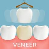 Dental veneers. Tooth anatomy. Stock Photos