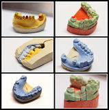 Dental wax colored model collage Royalty Free Stock Photo