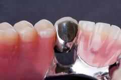Dental wax model Royalty Free Stock Photography