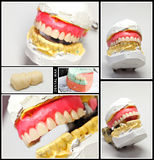 Dental wax model collage Stock Images