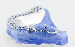 Dental wire bending for make a partial denture Stock Image