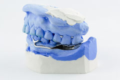 Dental wire bending for make a partial denture Stock Photo