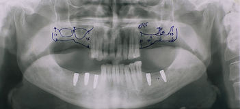 Dental x-ray Stock Photography