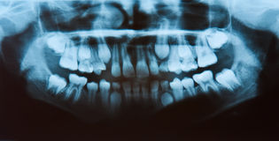 Dental X-Ray Stock Image