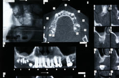 Dental X-ray Stock Photos
