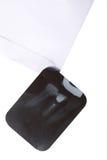 Dental x-ray film detail Stock Photo