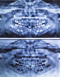 Dental X-Ray panoramic of Children Royalty Free Stock Images