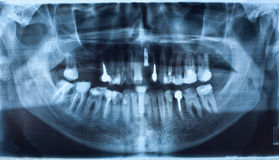 Dental X-Ray Royalty Free Stock Images