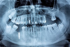 Dental x-ray with periodontitis problems, decayed teeth and impl Royalty Free Stock Image