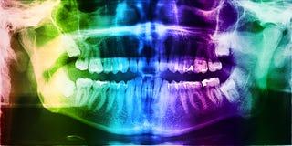 Dental X-Ray Photo Of Human Teeth Stock Photos