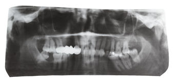 Dental X-ray picture of human jaws isolated Royalty Free Stock Images