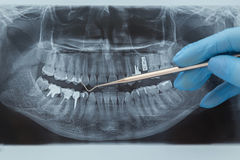 Dental X-ray. Radiography Royalty Free Stock Photography