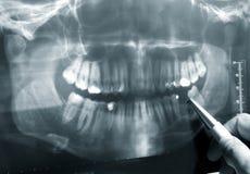 Dental X-Ray Stock Image