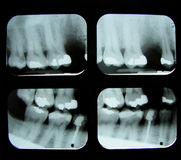 Dental x-rays Stock Image