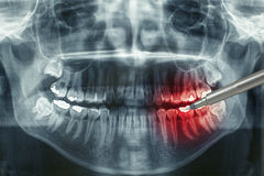 Dental xray. Panoramic dental xray, dentist shows painful area Royalty Free Stock Photography