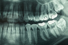 Dental xray Stock Photography