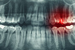 Dental xray Stock Photo