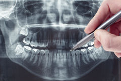Dental xray Royalty Free Stock Images