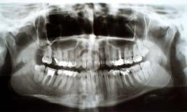 Dental xray. Panoramic, full mouth dental xray. X-ray of human teeth. Root canal treatment photo royalty free stock photo