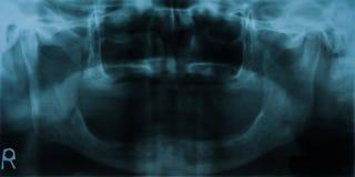 Dental Xray (x-ray). Full mouth dental x-ray (old man royalty free stock photos