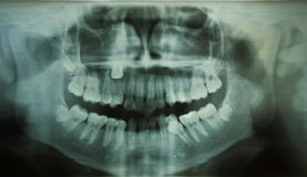Dental Xray (x-ray). Full mouth dental xray (x-ray Royalty Free Stock Images