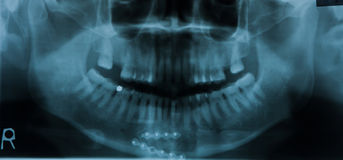 Dental Xray (x-ray) Royalty Free Stock Images