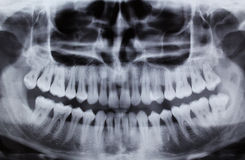 Dental Xray (x-ray). Full mouth panoramic dental X-ray of a 29 year old male. Wisdom teeth are visible, one is missing royalty free stock photos