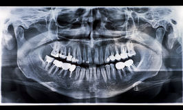 Dental xray. Dental x-ray with lots of dental crown Stock Photos
