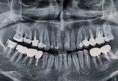 Dental xray. Dental x-ray with lots of dental crown Royalty Free Stock Image