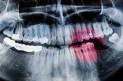 Dental Xray x-ray. Painful teeth concept - Panoramic dental X-Ray, teeth and head radiography Royalty Free Stock Images