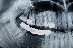Dental Xray x-ray. Panoramic dental X-Ray, teeth and head radiography Royalty Free Stock Photos