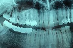 Dental Xray x-ray. Panoramic dental X-Ray, teeth and head radiography Stock Images