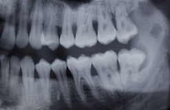 Dental Xray right half. Full mouth panoramic dental X-ray of a 29 year old male. Wisdom teeth are visible, one is missing Royalty Free Stock Photos