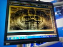 Dental xray on screen. Dental radiography on screen in dental clinic stock photos