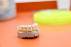 Zircon teeth Royalty Free Stock Photography