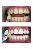 Dente che imbianca, prima e dopo Immagini Stock