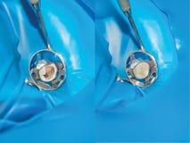 Dente che riempie di materiale di trattamento composito Befo di concetto fotografia stock libera da diritti